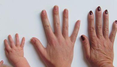 happy nails kalknagels