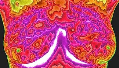 dikke buik door vleesboom